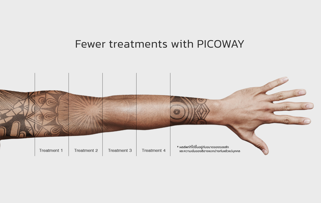 Tattoo Removal Treaments with PICOWAY
